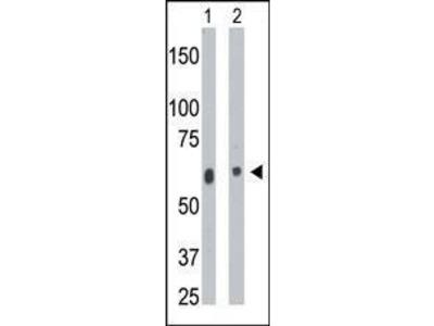 Rabbit Anti-CERK, CT Antibody