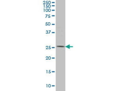 Mouse Anti-PYCRL Antibody