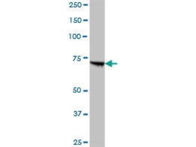 Mouse Anti-PCCA Antibody