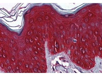 Mouse Anti-Keratin 17 Antibody