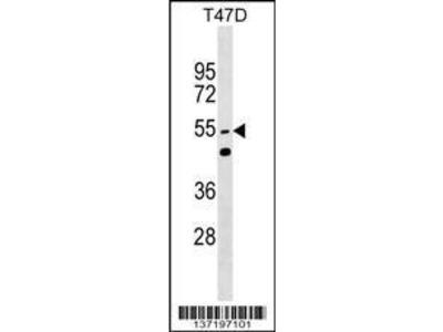 Rabbit Anti-HNRPLL, NT Antibody
