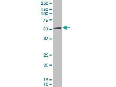 Mouse Anti-AMACR Antibody