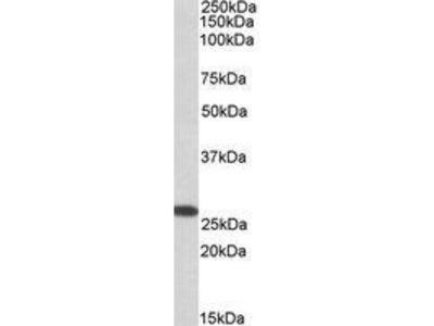 Goat Anti-CHCHD3 Antibody