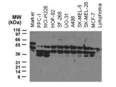 Rabbit Anti-NOD2 Antibody