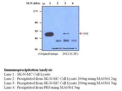 Mouse Anti-ENO1 Antibody