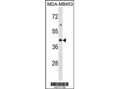 Rabbit Anti-OR2B6, CT Antibody