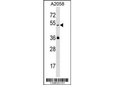 Rabbit Anti-PRAMEL, ID Antibody