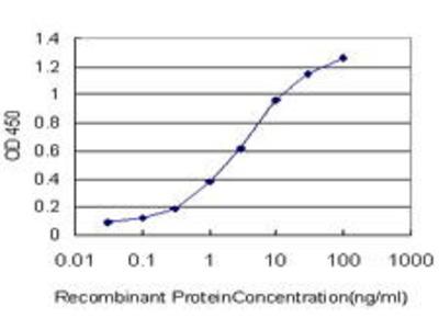 Mouse Anti-ABTB1 Antibody