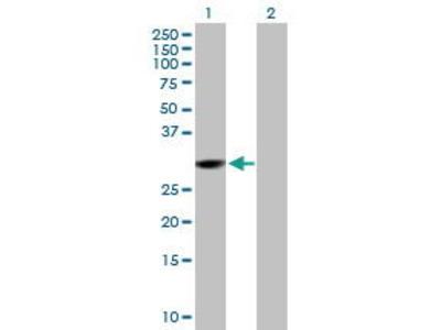 Mouse Anti-CMBL Antibody