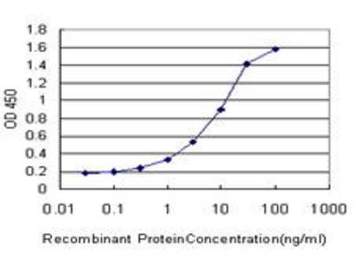 Mouse Anti-MAP1LC3B Antibody