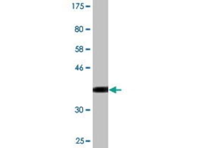 Mouse Anti-CCNT2 Antibody