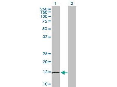 Rabbit Anti-SKP1 Antibody