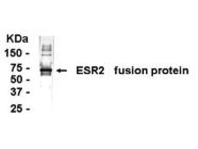Pab Ch x human Estrogen Receptor, beta (ERb) antibody