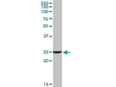 Rabbit Anti-PPP3R1 Antibody