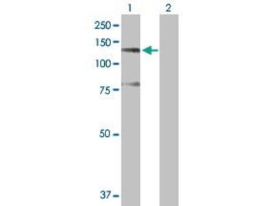 Rabbit Anti-SUGP2 Antibody