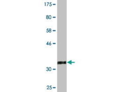 Mouse Anti-TMOD3 Antibody