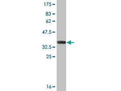 Mouse Anti-SULT1B1 Antibody