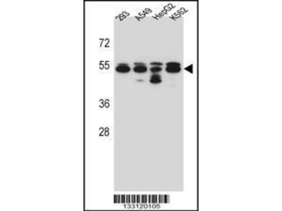 Rabbit Anti-TUBB8, NT Antibody