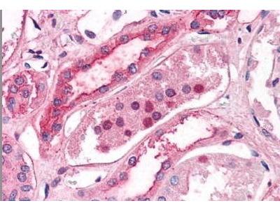 Rabbit Anti-SLC39A14 Antibody