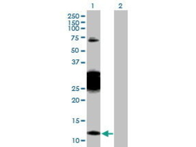 Rabbit Anti-CBY1 Antibody