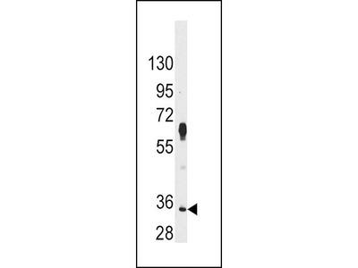 Rabbit Anti-PIM2, CT Antibody