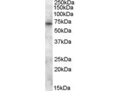 Goat Anti-ABCD3 Antibody