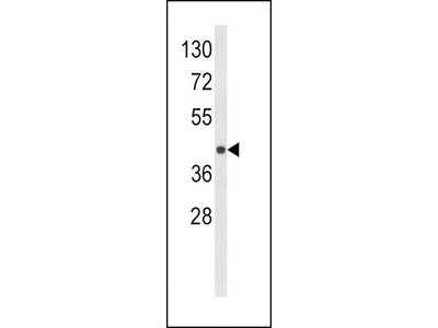 Rabbit Anti-HLA Class 1 Antigen E Antibody