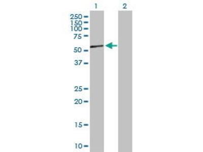 Rabbit Anti-NR2F2 Antibody