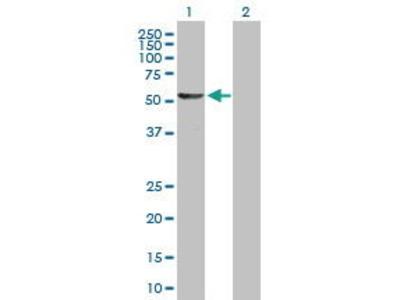 Mouse Anti-DALRD3 Antibody