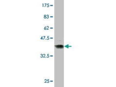 Mouse Anti-CKMM Antibody