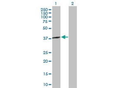 Rabbit Anti-SPO11 Antibody
