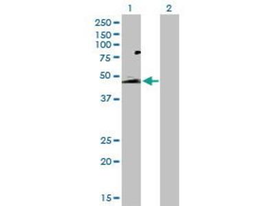 Rabbit Anti-SLC52A1 Antibody