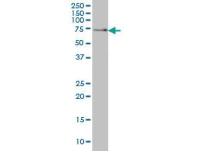 Mouse Anti-SH3BP2 Antibody