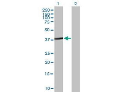 Mouse Anti-ACTL8 Antibody