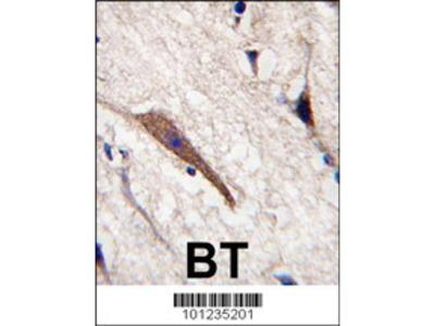 Rabbit Anti-PAK5 Antibody