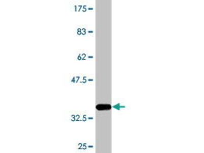 Mouse Anti-RABAC1 Antibody