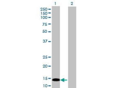 Mouse Anti-PRKRIR Antibody