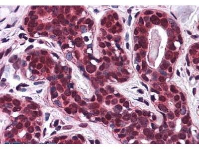 Rabbit Anti-SLC5A6 Antibody
