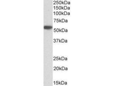 Goat Anti-Alpha-1-antitrypsin Antibody