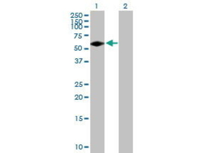 Mouse Anti-FGR Antibody