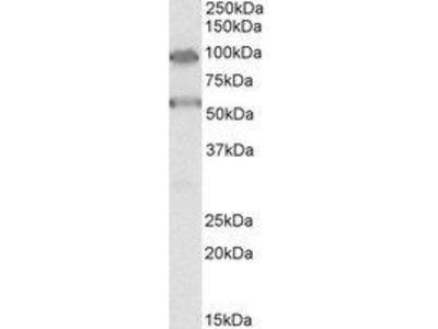 Goat Anti-TBC1D9 Antibody