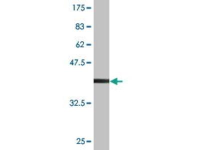 Mouse Anti-RHOXF2 Antibody