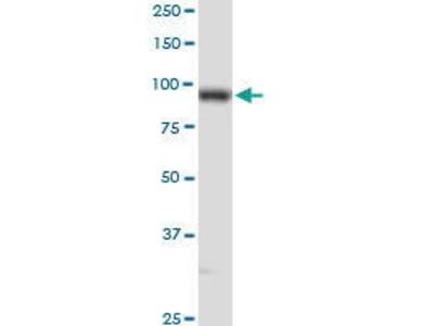 Rabbit Anti-PLOD2 Antibody