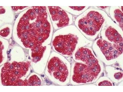 Rabbit Anti-P2RY1 Antibody