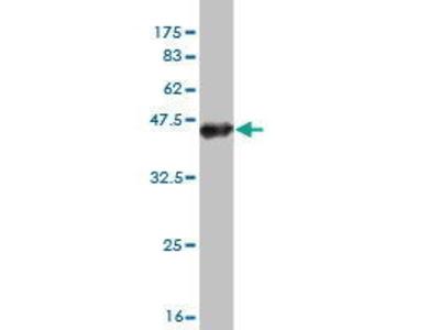 Mouse Anti-TTYH1 Antibody