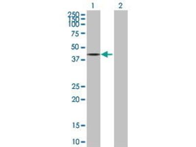 Mouse Anti-PPP2R4 Antibody