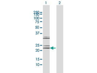 Rabbit Anti-NT-4 Antibody