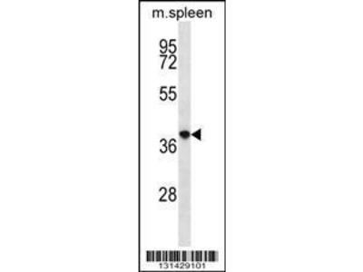 Rabbit Anti-PQLC2, CT Antibody