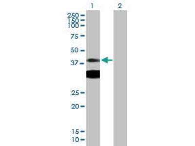 Mouse Anti-PRKAR1A Antibody