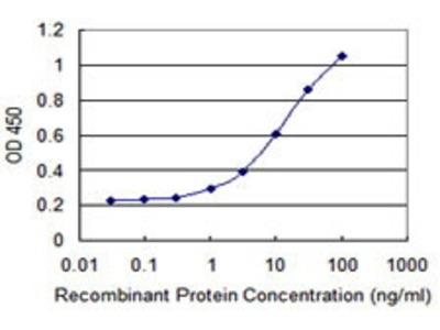 Mouse Anti-TRNT1 Antibody